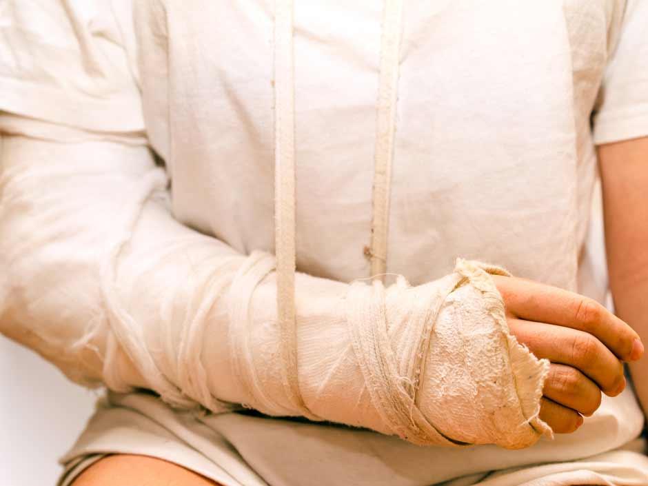 Bone-Damage